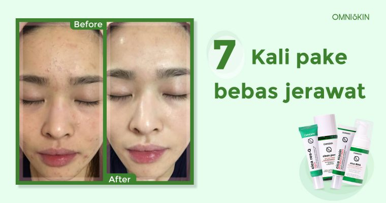 1900 x 1000 acne series 2