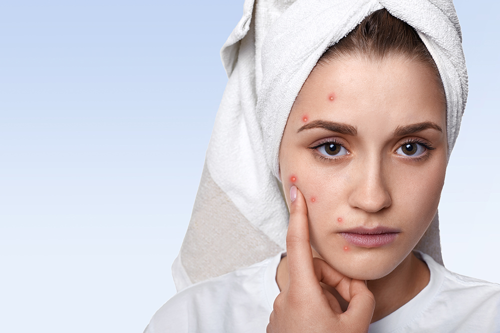 An isolated portrait of young woman having problem skin and pimp